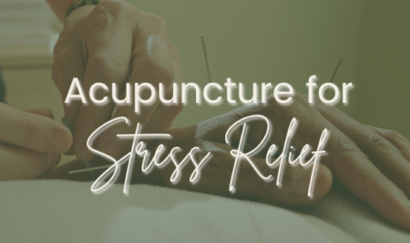 Acupuncture for Stress Relief